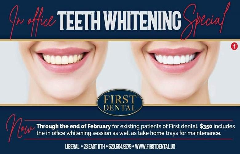 first dental whiten article